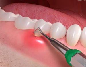 Gum_disease_treatment_02